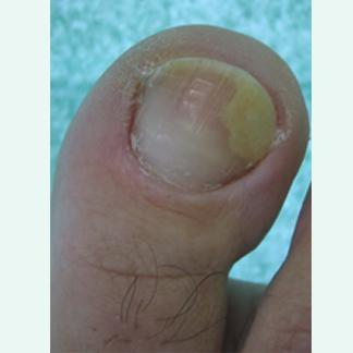Trattamento di un fungo di ammoniaca di liquido di piede